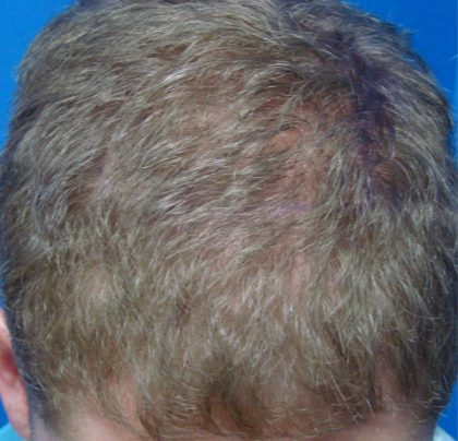 Hair Transplants Before & After Patient #945