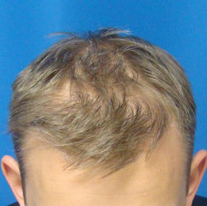 Hair Transplants Before & After Patient #960
