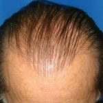 Hair Transplants Before & After Patient #933