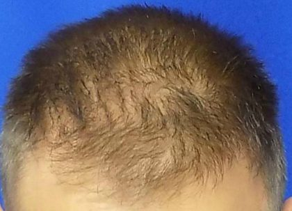Hair Transplants Before & After Patient #950