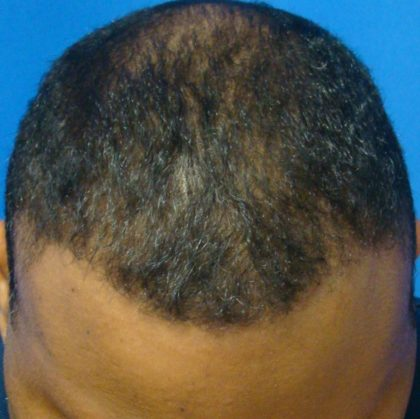 Hair Transplants Before & After Patient #967