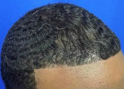 Hair Transplants Before & After Patient #928