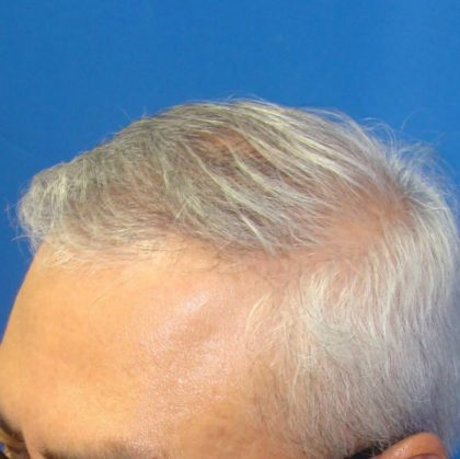 Hair Transplants Before & After Patient #955