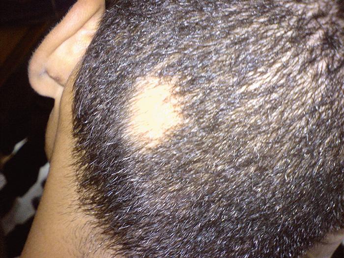 Allopecia areata hair transplant houston