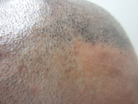 Hair Line Scalp Micropigmentation FUT Scar