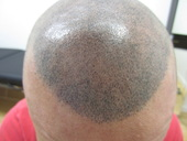 Scalp Micro-Pigmentation Houston Hair Transplant Center