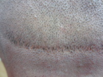 Scalp Micropigmentation into a Hair Transplant FUT Scar