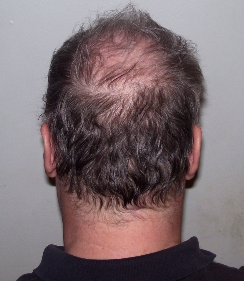 Hair Loss Transplant Houston Texas