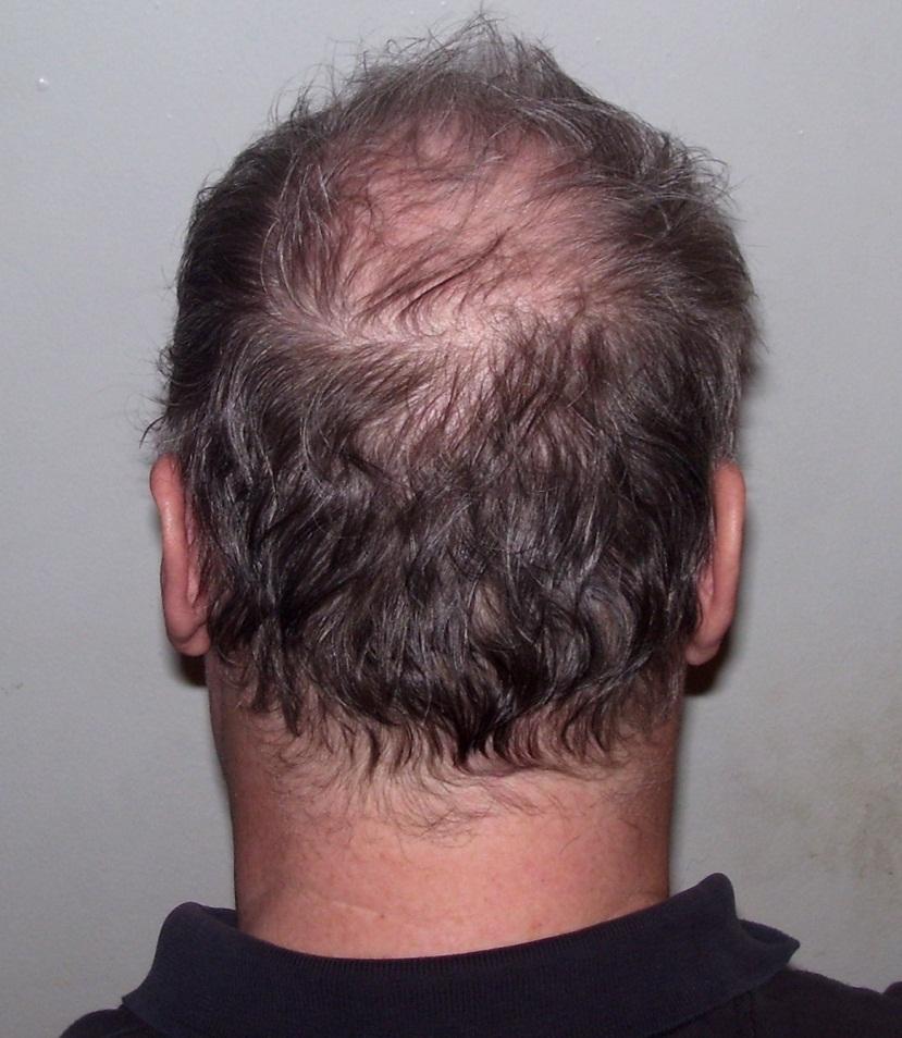 hair-loss-transplant-houston-texas.jpg