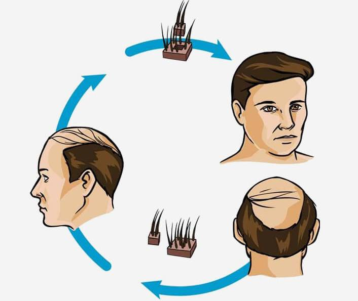 hair transplant advances history houston texas