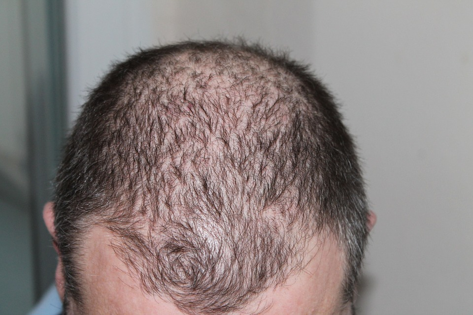 Hair Transplant Permanent Houston