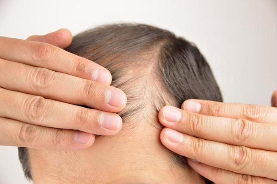 Male Pattern Baldness Houston Hair Transplant Dr Jezic Mesmerizing Male Pattern Baldness