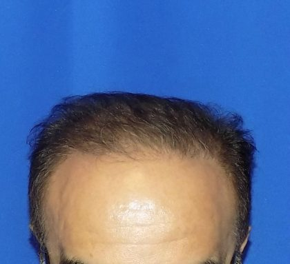 Hair Transplants Before & After Patient #1196