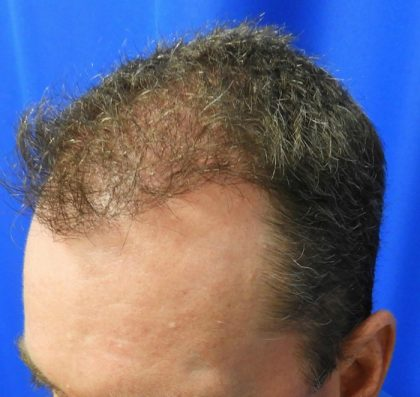 Hair Transplants Before & After Patient #1223