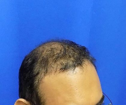 Hair Transplants Before & After Patient #1243