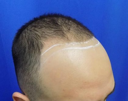Hair Transplants Before & After Patient #1374
